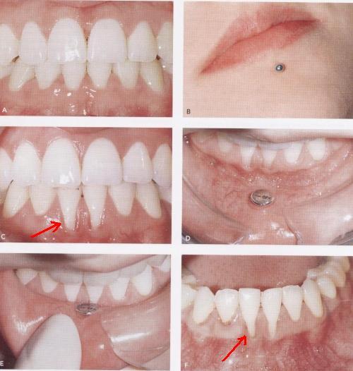 Opina Sobre Piercings En Este Blog Vamos A Informar Y Opinar Sobre
